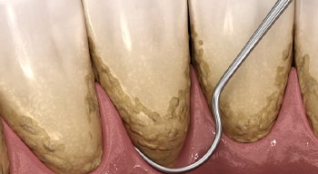 computer illustration of a dental scaler clearing plaque from teeth