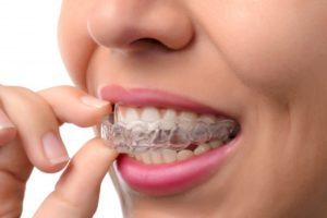 woman placing invisalign tray in her mouth