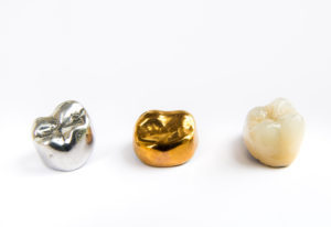 Three white, silver and gold dental crowns