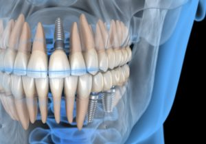 computer model of dental implants holding restorations in place
